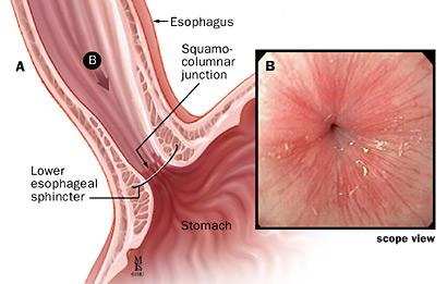 Gastroesophageal Sphincter Acid Reflux - What sho...